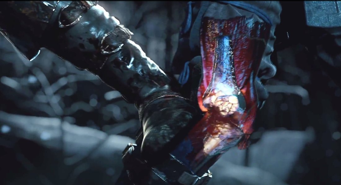 mortal-kombat-x-xray-attacks